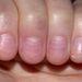 A Muehrcke-vonalak máj-vagy vesebetegségre hívhatják fel a figyelmet.