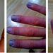 Raynaud-kór miatt nem csak az ujjak,de a körmök is elszíneződhetnek.