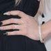 Ez meg Kesha kézfeje körmöstül-gyűrűstül